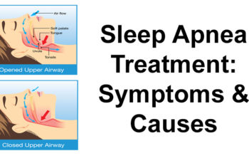 Sleep Apnea Treatment: Symptoms & Causes