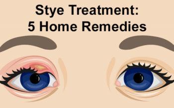 Stye Treatment: 5 Home Remedies