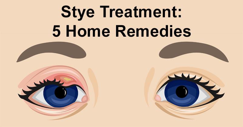 Stye Treatment 5 Home Remedies Davidwolfe Com