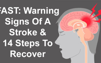 FAST: Warning Signs Of A Stroke & 14 Steps To Recover