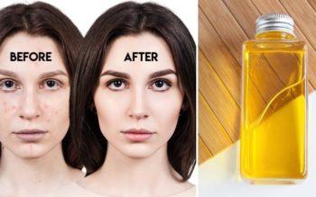 Argan Oil: 12 Surprising Beauty Uses