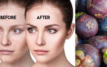 Mangosteen: 7 Benefits & Uses