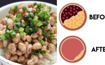 Natto: 3 Nutrition Benefits You Should Know