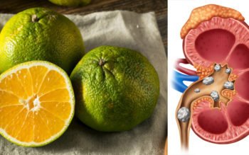 6 Benefits Of Ugli Fruit