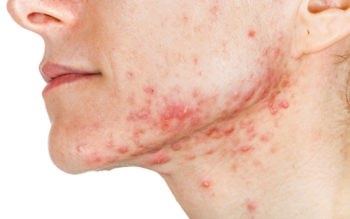 10 Home Remedies For Acne