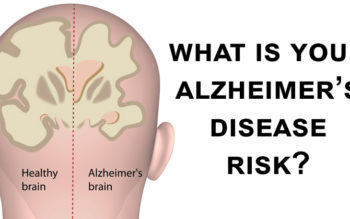 What Is Your Alzheimer's Disease Risk?