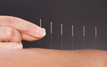 What Is Acupuncture? 6 Benefits To Consider