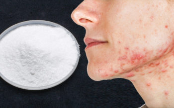 6 Benefits of Boric Acid