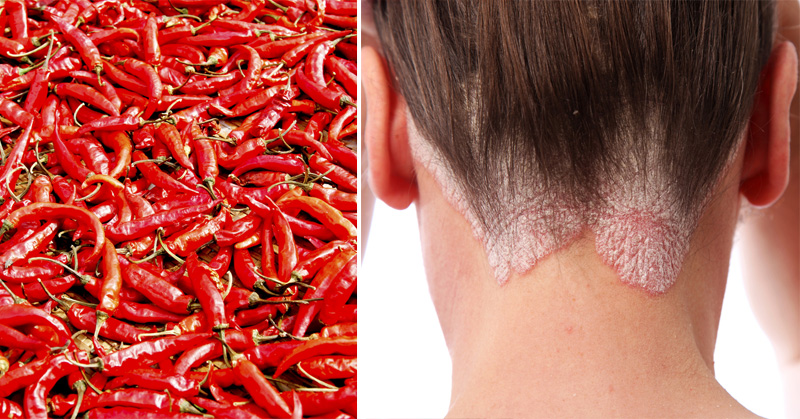 capsaicin health benefits FI